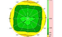 ZTE Axon 11 Blickwinkelstabilität